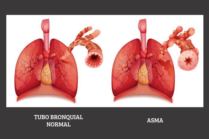 Vías respiratorias de un paciente con asma