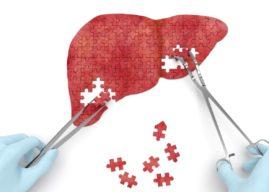 Cirrosis: Causas, Síntomas y Diagnóstico