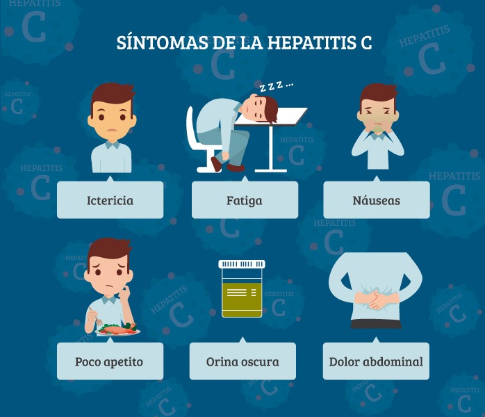 Síntomas virus de la hepatitis C
