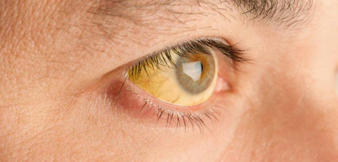 contagio de hepatitis A: ictericia