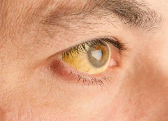 Ictericia: causas, síntomas y tratamiento