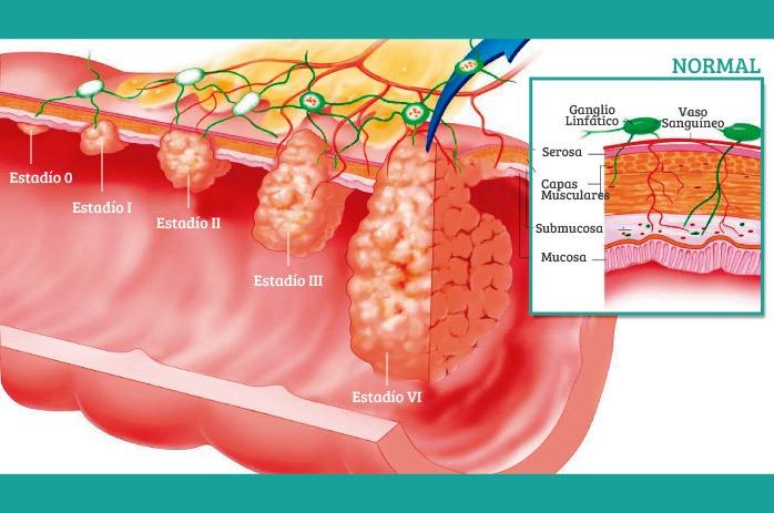Diagnóstico de cáncer: estadificación del cáncer