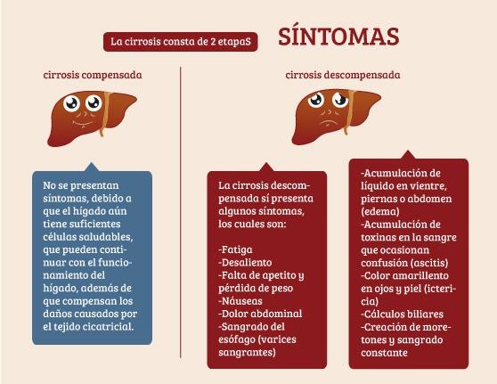 sintomas del cirrosis al higado