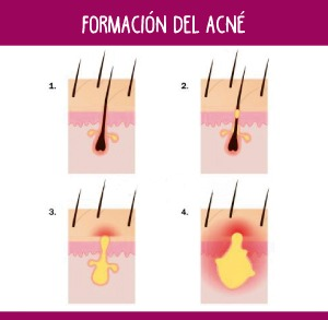 Formación del acné