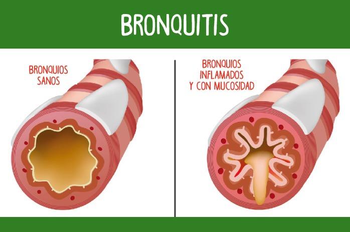 Causas de la bronquitis