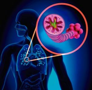 Paredes vías respiratorias inflamadas