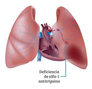 Deficiencia de alfa-1 antitrispina