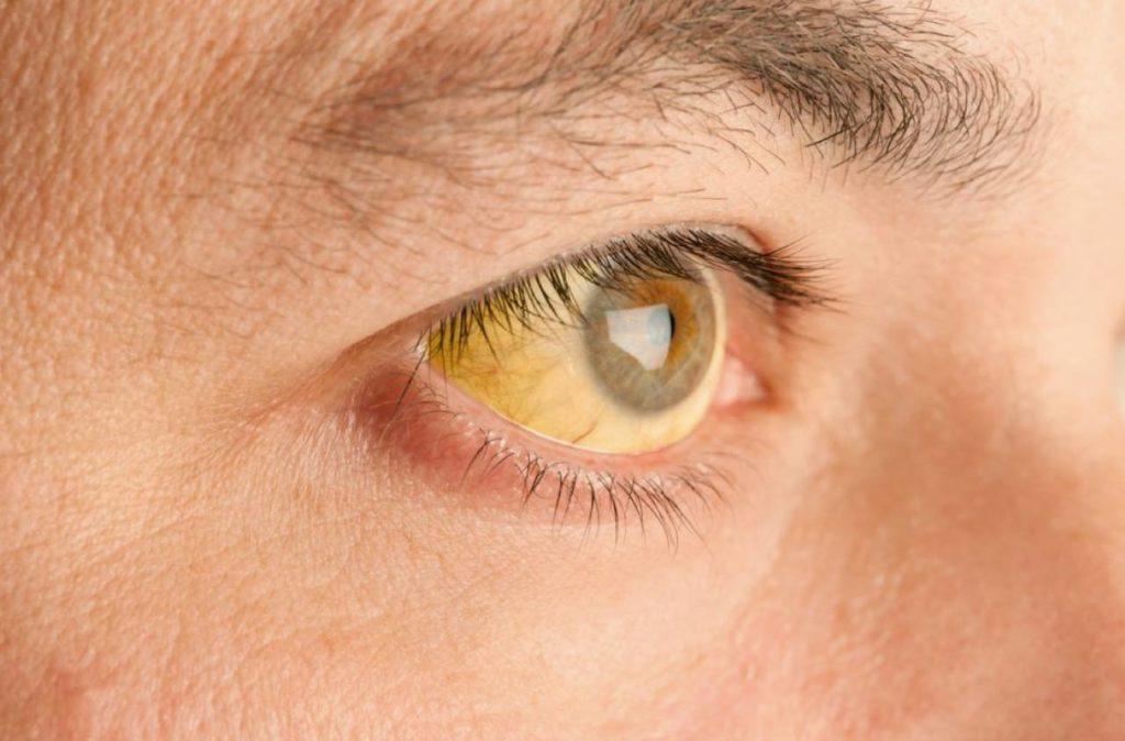 Función del hígado: síntomas de enfermedad hepática, ictericia