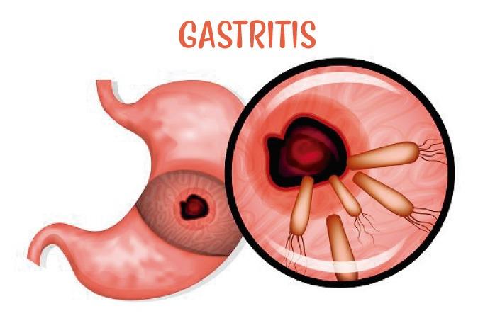 Gastritis crónica: síntomas