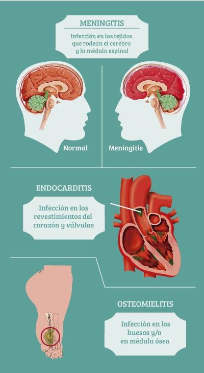 Síntomas de salmonelosis y enfermedades relacionadas