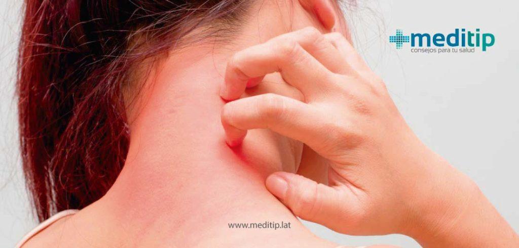 Mitos sobre los aceites esenciales: alergia