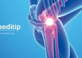 Artroscopía de rodilla: tecnología a favor de la salud