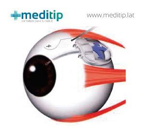 esquema de ojo en cirugía