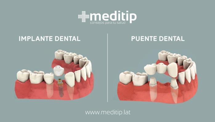 Diferencia entre implante y puente de tres unidades