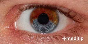 ojo con glaucoma pigmentario