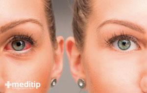 ojo con glaucoma y sin glaucoma