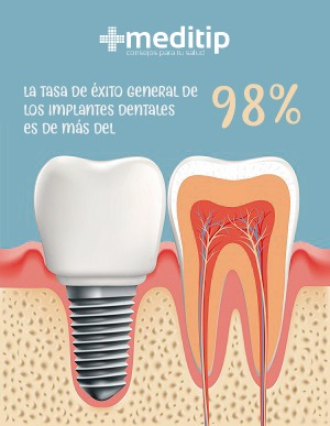 Tasa de éxito de los implantes dentales (98%)