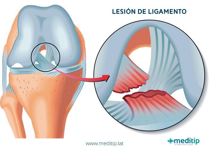 explicación de una lesión en el ligamento