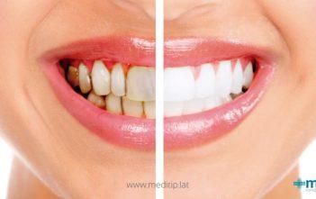comparación de dientes con manchas dentales y dientes sanos