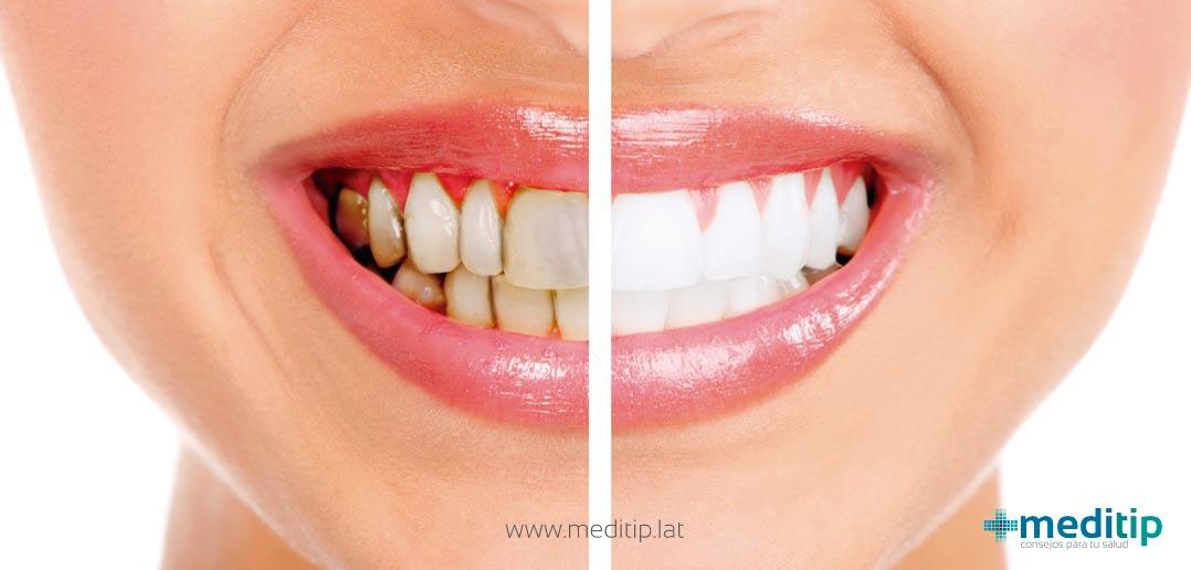 Dejar de fumar: manchas amarillentas, dientes sanos