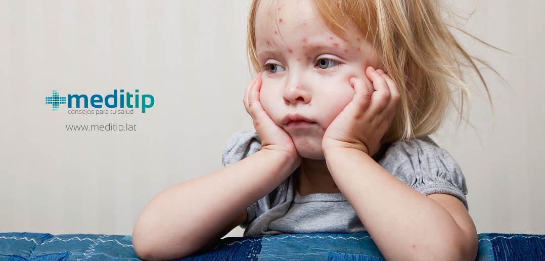 niña con varicela