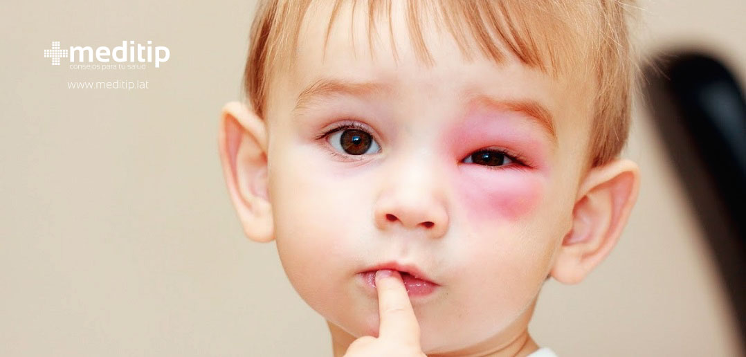 niño con alergia a los insectos