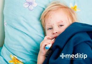 niño con varicela