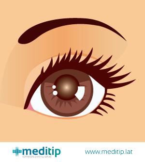 ilustración ojo con catarata