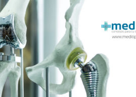 Prótesis de rodilla: la solución definitiva