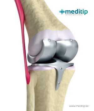 Prótesis de base métalica en rodilla