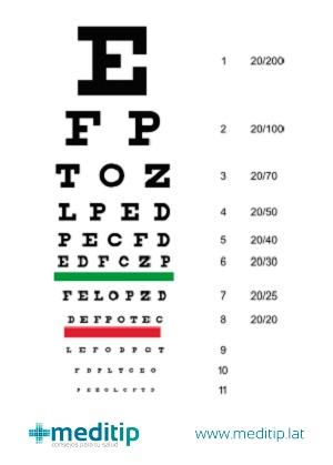 Evolución de las cataratas: examen de la vista, tabla optométrica