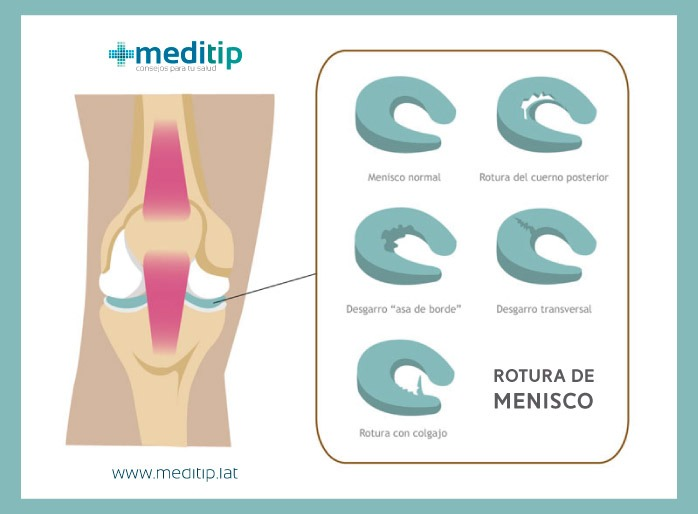 Causas comunes del dolor de rodilla: rotura de menisco