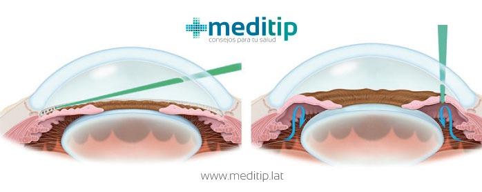 Trabeculoplastia láser