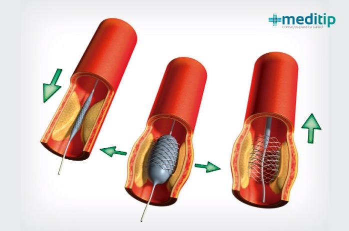 Arterias con stents