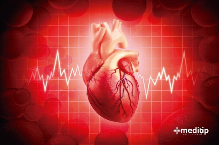 Corazón con arritmia