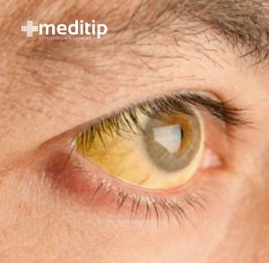 ojo amarillo por bilirrubina