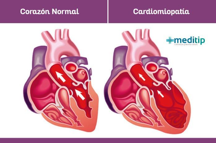 Corazón con cardiomiopatía y corazón normal