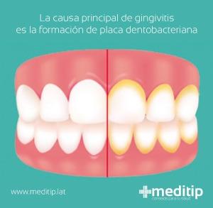 causa principal de gingivitis
