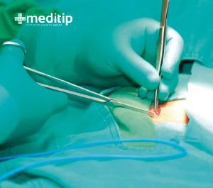 cirugía de reparación de hernia epigástrica