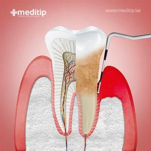 diente con periodontitis