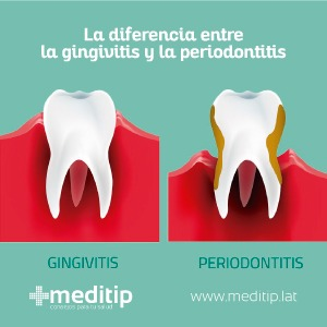 diente con gingivitis y diente con periodontitis