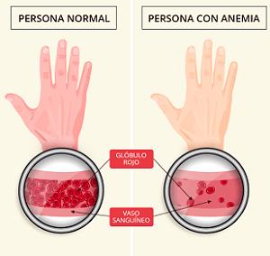 Diferencias en la anemia