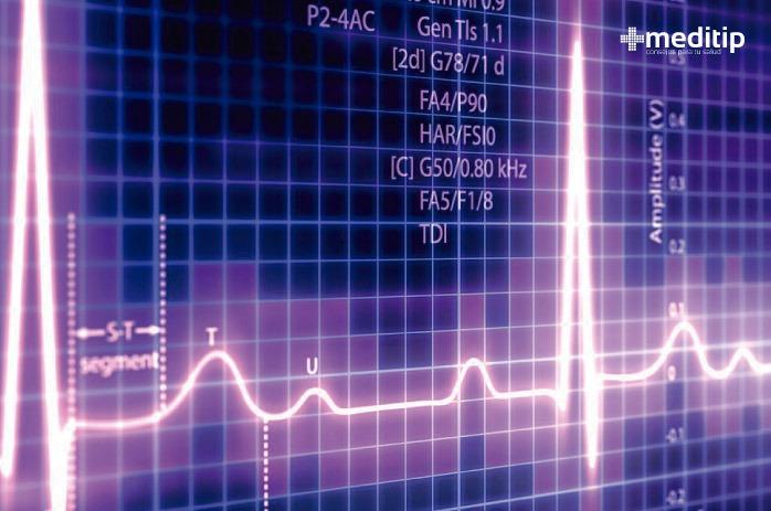Pantalla de un electrocardiograma