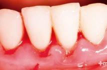 encías con gingivitis