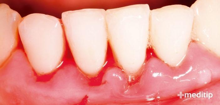 Gingivitis: causas, tratamiento y prevención