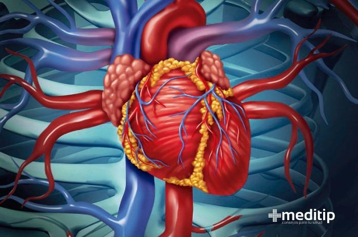 Enfermedad cardiaca