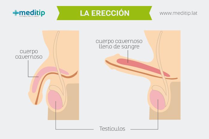 erección