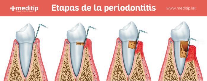 diferencia de las etapas de la periodontitis