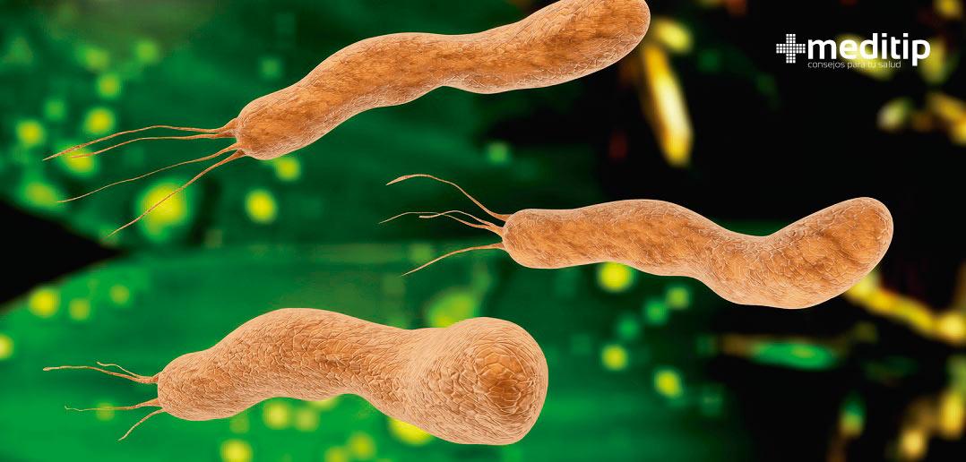 H. pylori , causa de la gastritis , úlcera