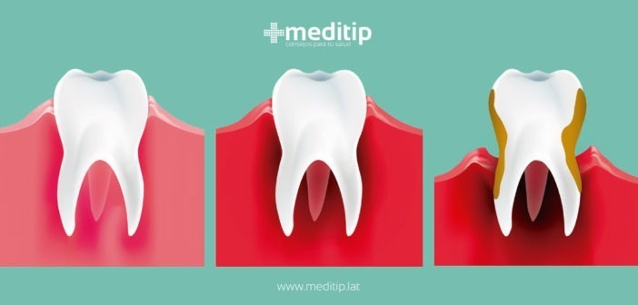 Periodontitis o la enfermedad periodontal
